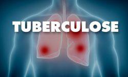 Saúde reforça importância do diagnóstico e tratamento da tuberculose
